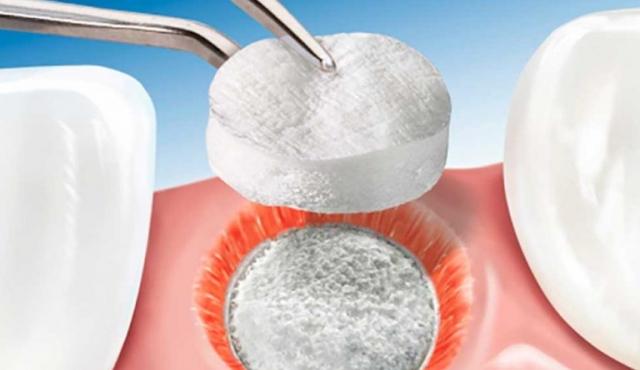 Biomateriais em Implantodontia e Periodontia: o futuro em evolução