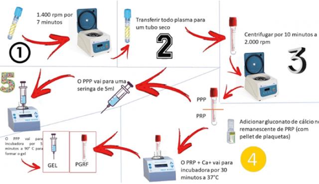 Plasma gel para odontologia: a beleza está no sangue