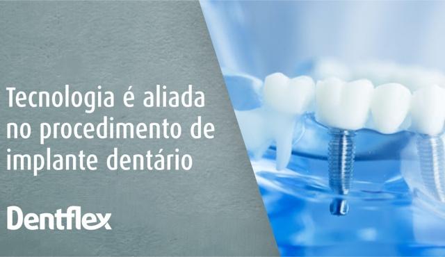Tecnologia é aliada no procedimento de implante dentário